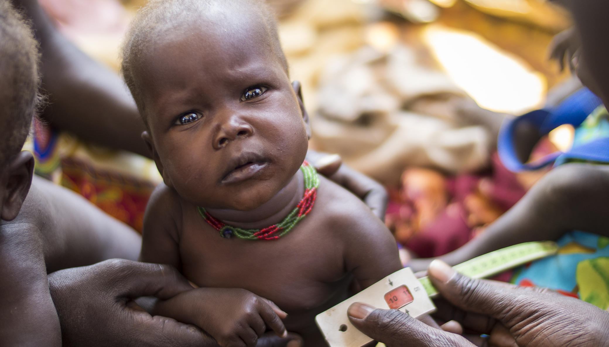 East Africa Hunger Crisis: Concern's Response