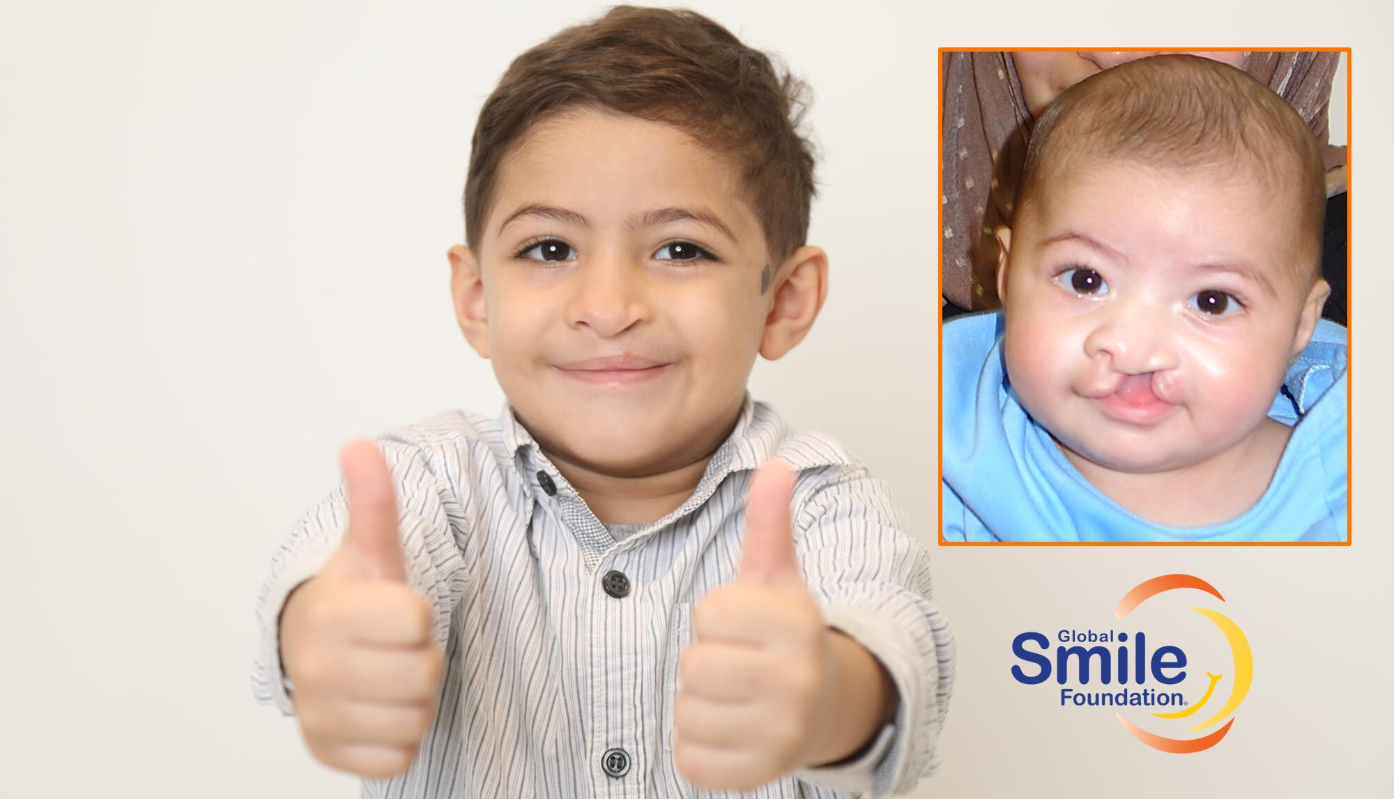 Fund for Children With Cleft in Lebanon/MENA