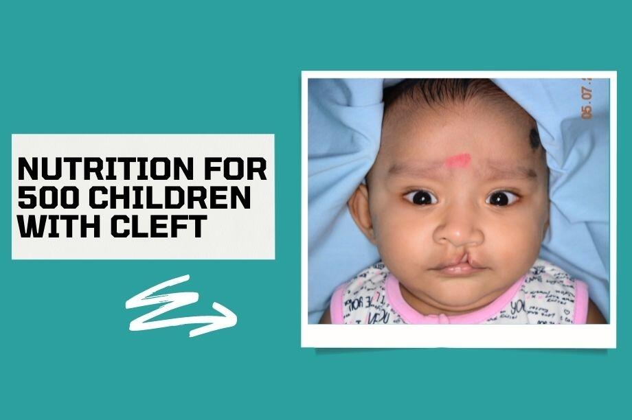 Protect 500 Cleft Kids from Covid-19